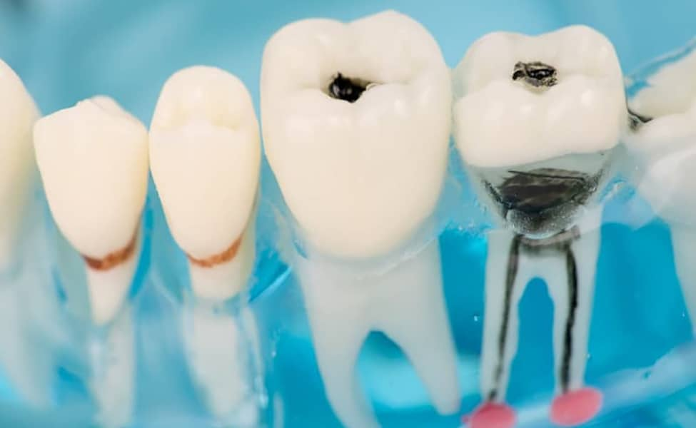 Canva Close up of dental model and caries 1 1