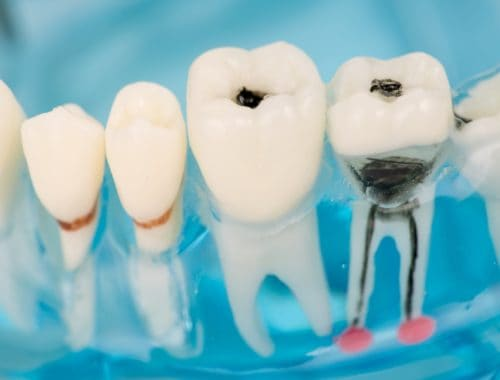 Canva Close up of dental model and caries 1