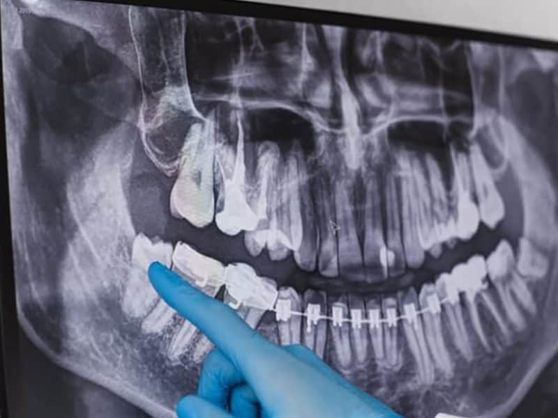 Canva Doctor points wisdom tooth in dental x ray. 1 1