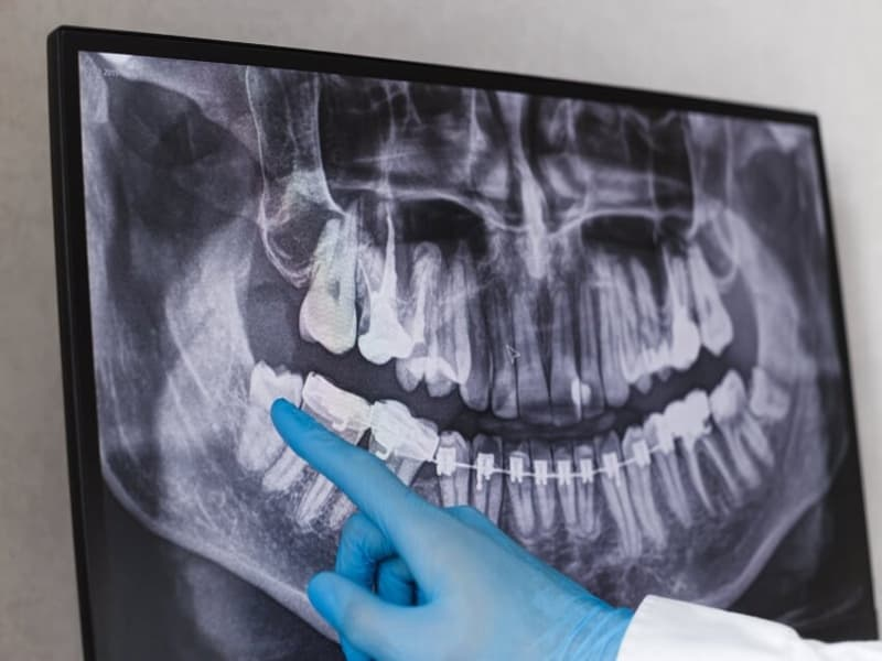 Canva Doctor points wisdom tooth in dental x ray. 1