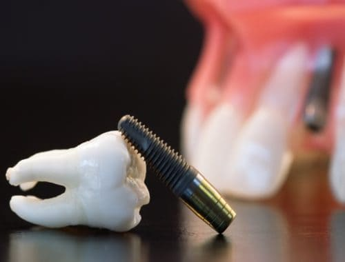 Canva Real Human Wisdom Tooth Implant Dental and Plastic Teeth Model 1