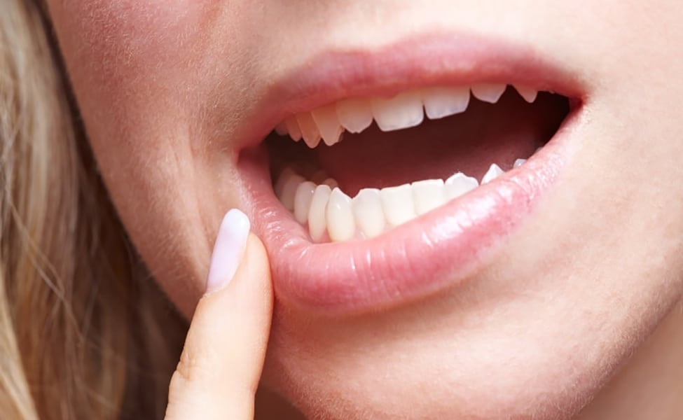 Canva Woman with Pain in Her Gums 1 1