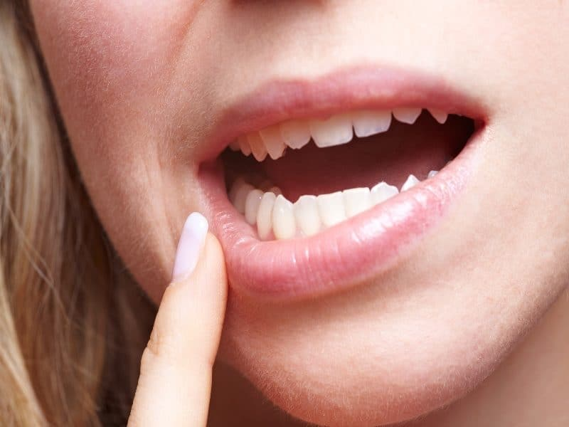Canva Woman with Pain in Her Gums 1