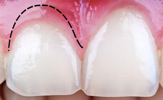 alargamiento de corona 01 periodoncia e implantes monterrey