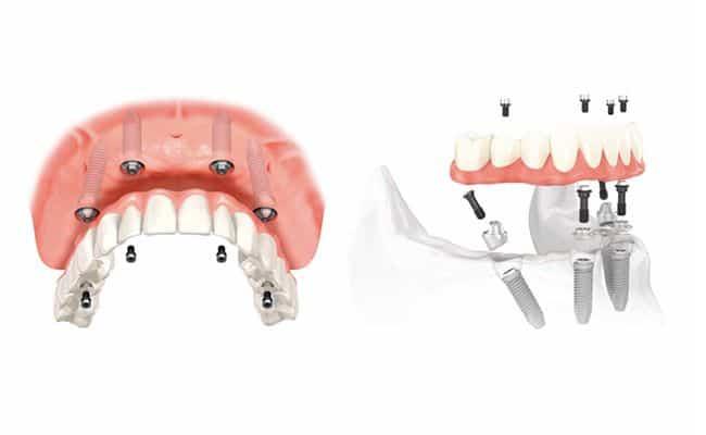 all on 4 01 periodoncia e implantes monterrey