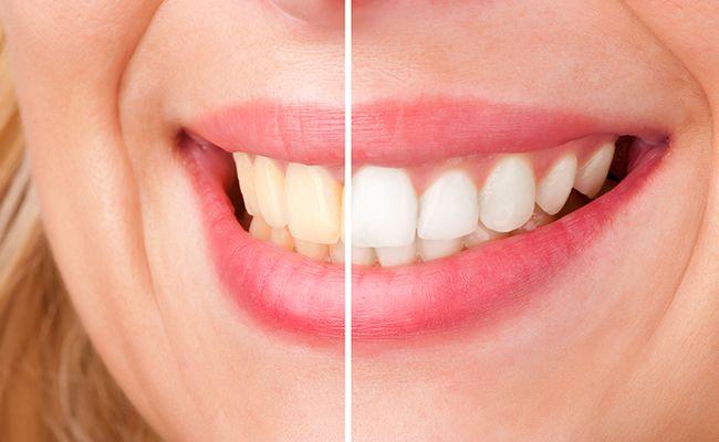 blanqueamiento dental 01 periodoncia e implantes monterrey
