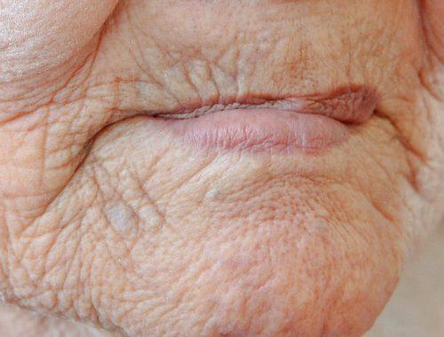 boca cerrada de persona de 3a edad con perdida dental periodoncia e implantes monterrey