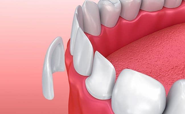 carillas 01 periodoncia e implantes monterrey