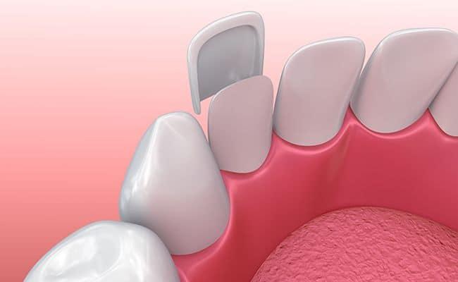 carillas 02 periodoncia e implantes monterrey