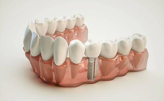 cirugia de implantes dentales 01 periodoncia e implantes monterrey