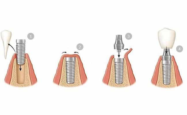 cirugia de implantes dentales 02 periodoncia e implantes monterrey