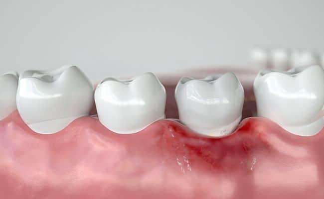 cirugia periodontal 01 periodoncia e implantes monterrey