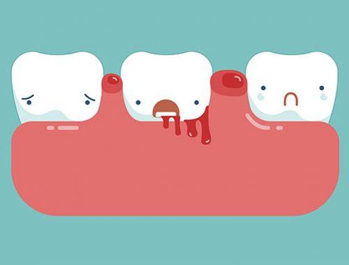 como evitar el sangrado de la encia periodoncia e implantes monterrey