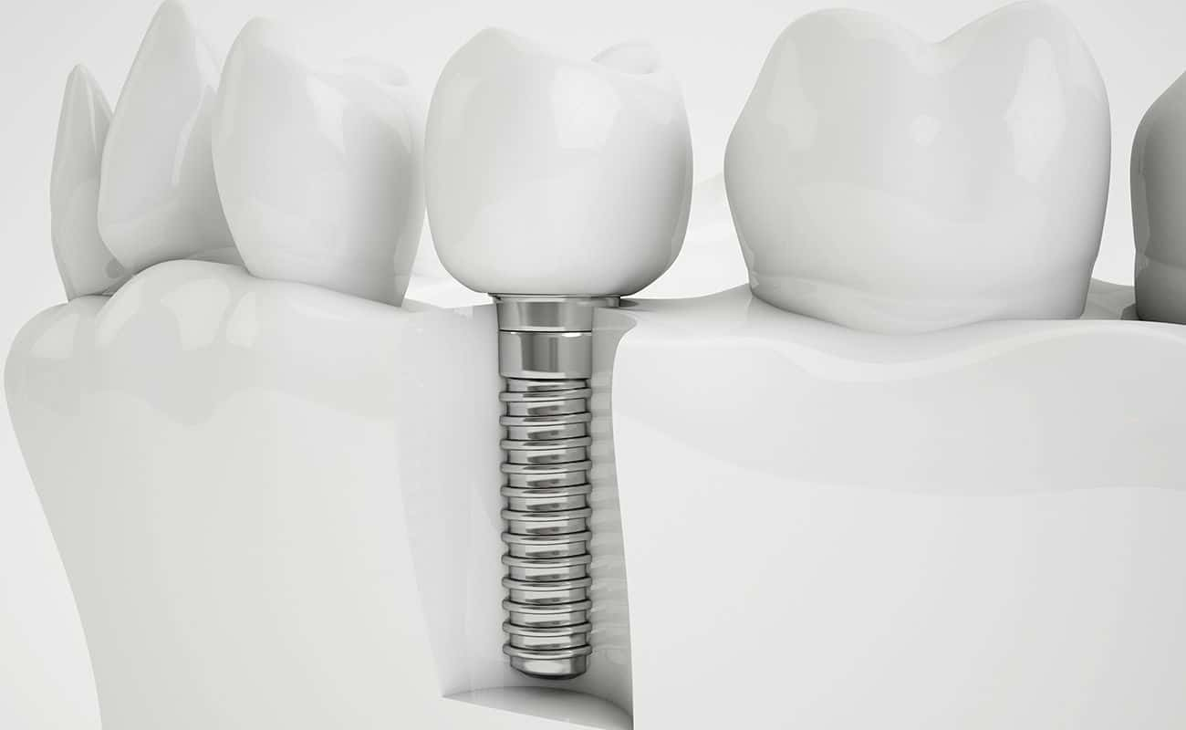 corte mostrando implante dental periodoncia e implantes monterrey