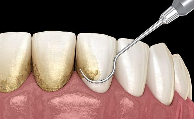 curetaje 01 periodoncia e implantes monterrey