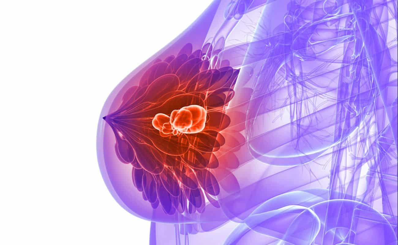 dibujo de cancer de mama periodoncia e implantes monterrey