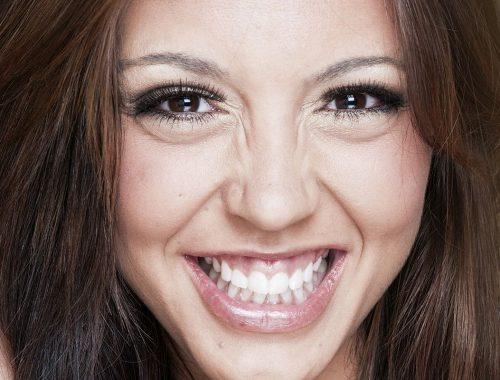 dientes que se ven chicos o con mucha encia periodoncia e implantes monterrey