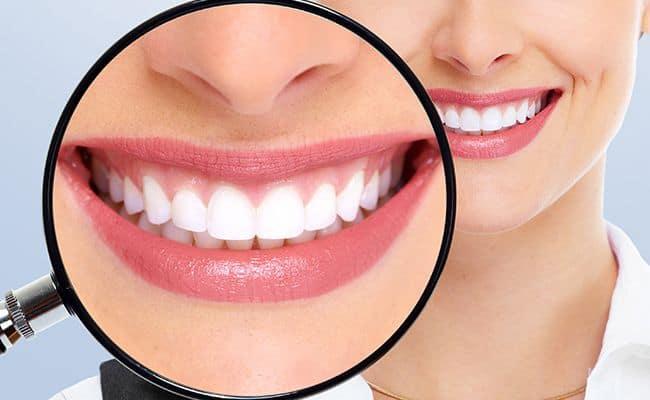 diseno de sonrisa 01 periodoncia e implantes monterrey