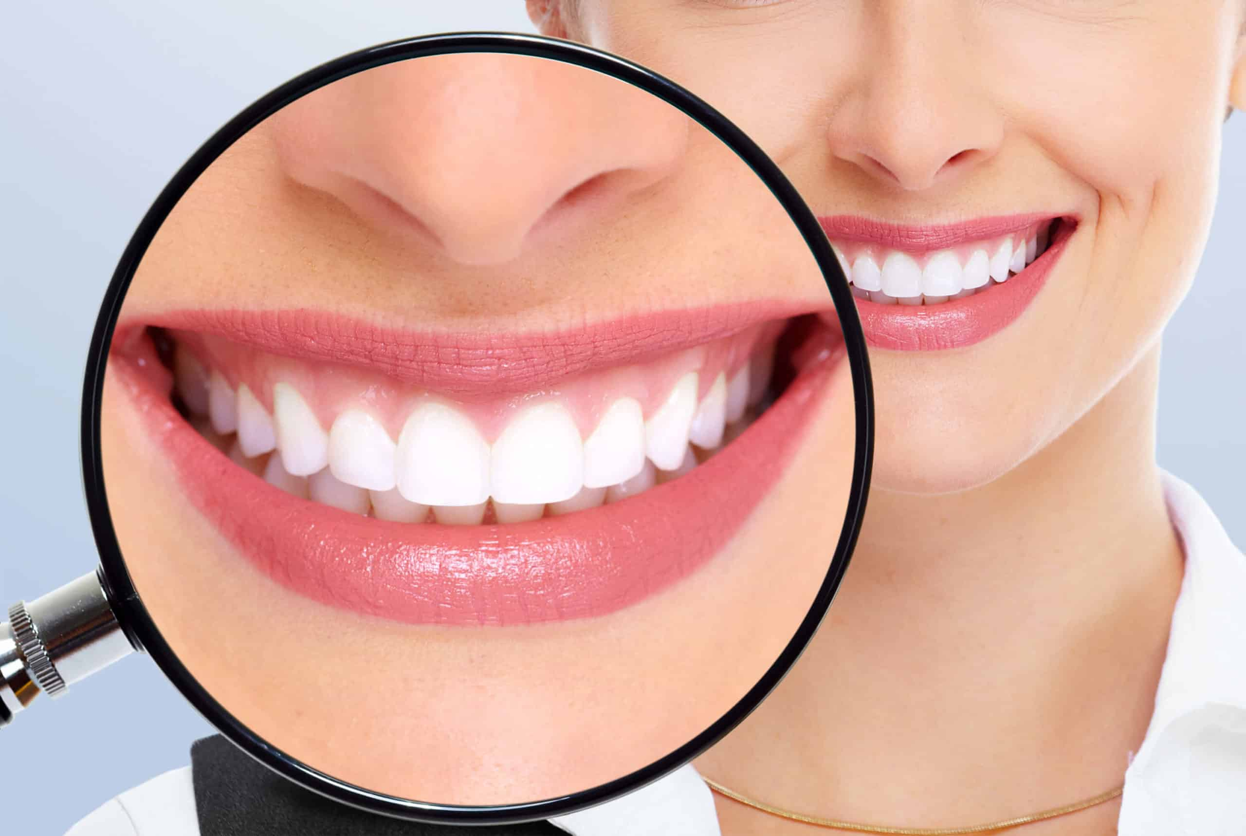 diseno de sonrisa 02 periodoncia e implantes monterrey 1