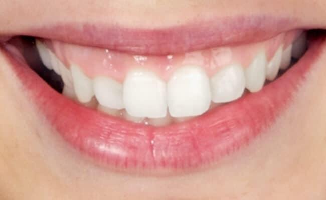diseno de sonrisa 03 periodoncia e implantes monterrey