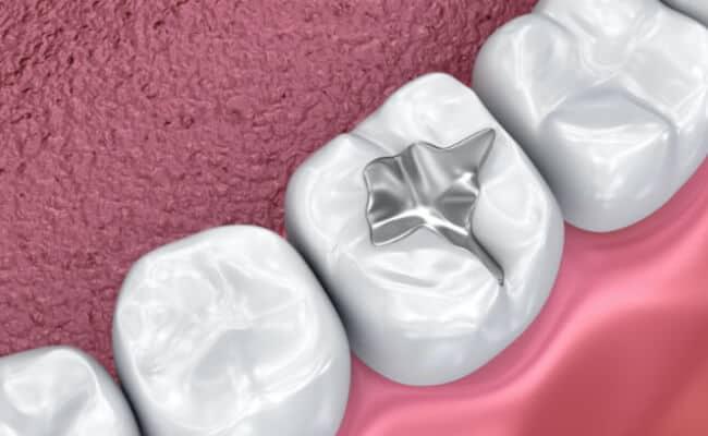 empastes monterrey 02 periodoncia e implantes monterrey 1