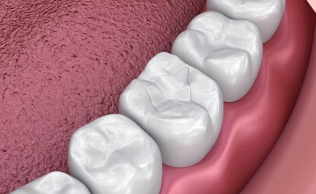 empastes monterrey 03 periodoncia e implantes monterrey