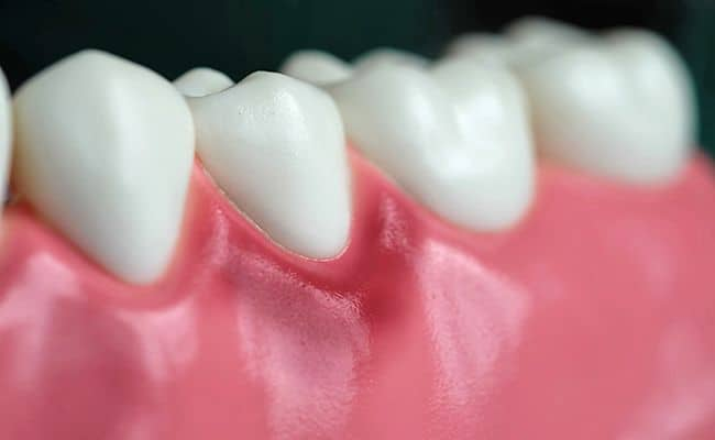 enfermedad periodontal 02 periodoncia e implantes monterrey