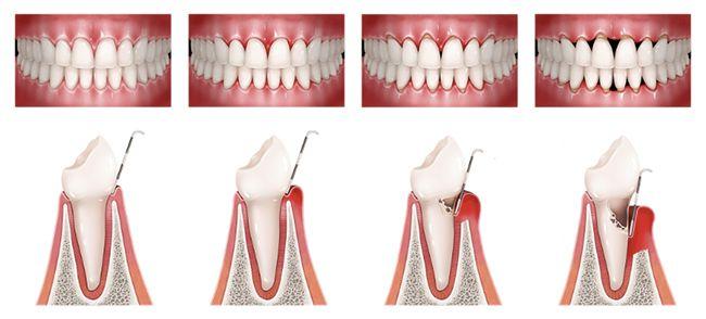 enfermedad periodontal 03 periodoncia e implantes monterrey