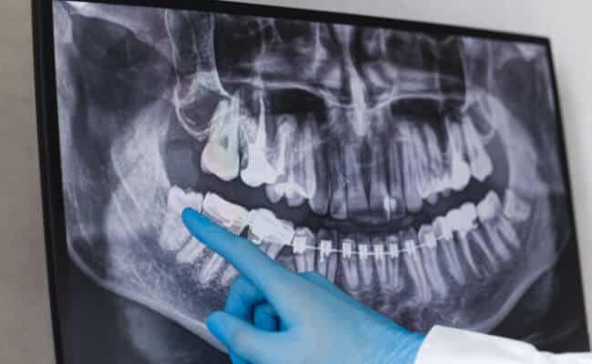 extraccion dental monterrey 01 periodoncia e implantes monterrey