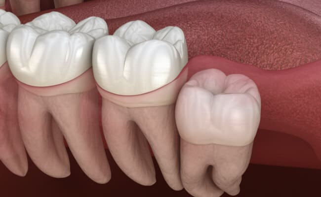 extraccion dental monterrey 02 periodoncia e implantes monterrey