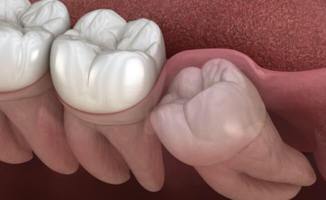 extraccion dental monterrey 03 periodoncia e implantes monterrey