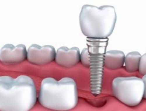 implante dental inmediato periodoncia e implantes monterrey