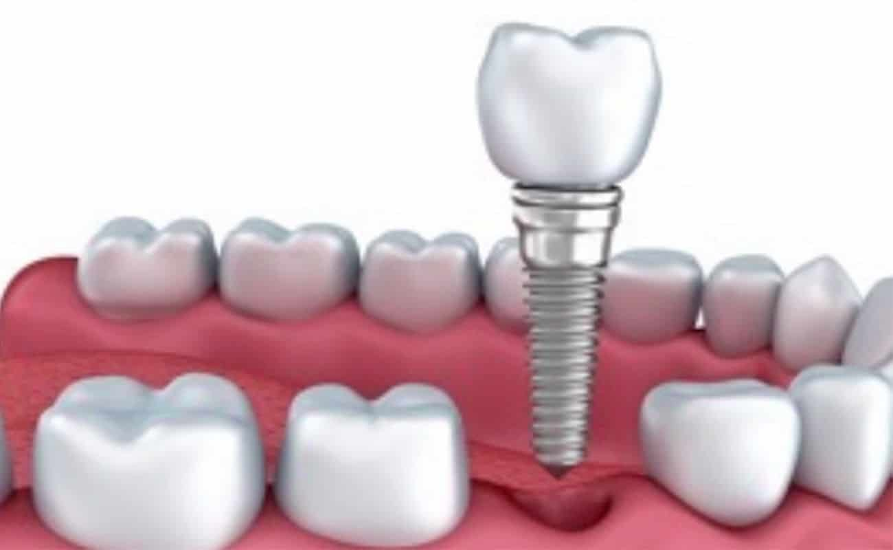 implante dental inmediato periodoncia e implantes monterrey