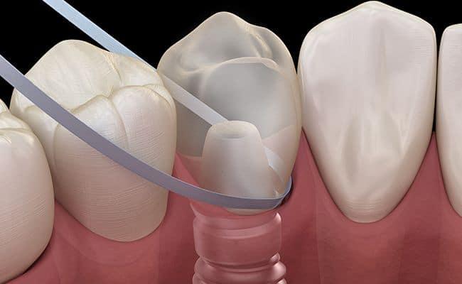 implantes dentales 02 periodoncia e implantes monterrey