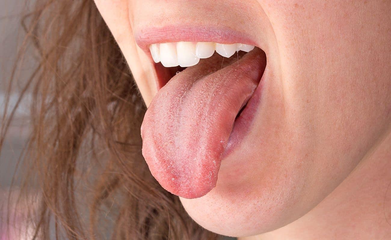 limpieza de la lengua periodoncia e implantes monterrey