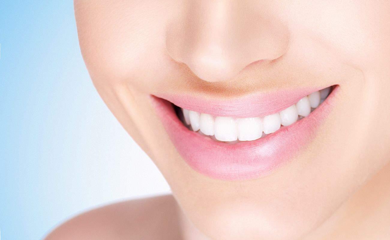 muestra de blanqueamiento de dientes con kit casero periodoncia e implantes monterrey