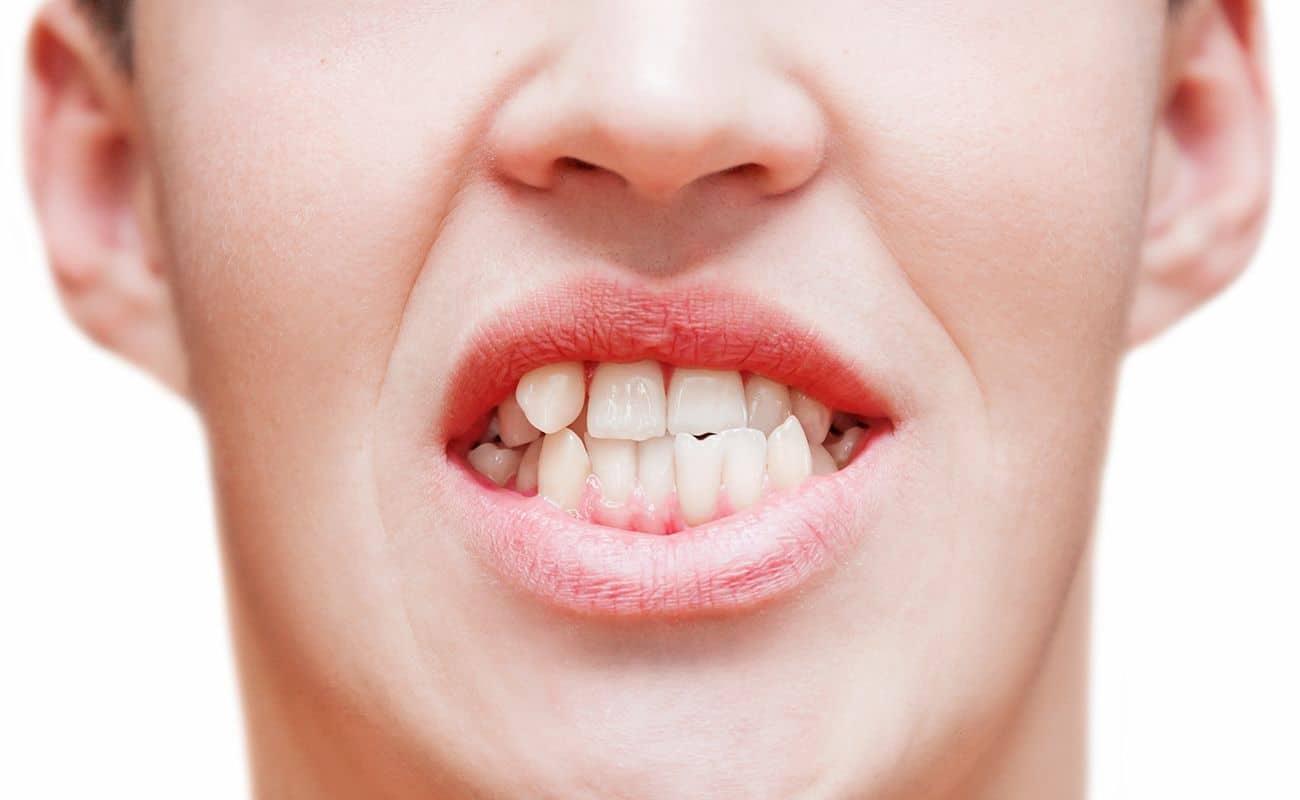 muestra de dientes apinados periodoncia e implantes monterrey