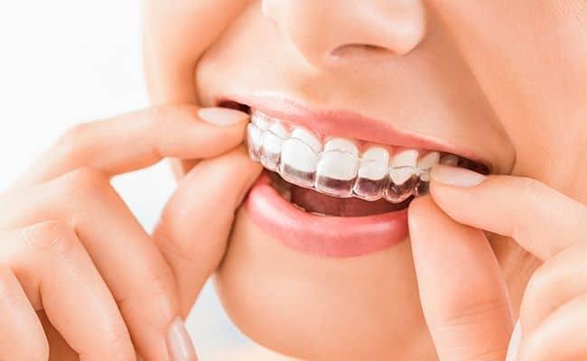ortodoncia invisible invisalign 02 periodoncia e implantes monterrey