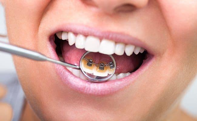 ortodoncia invisible lingual 01 periodoncia e implantes monterrey
