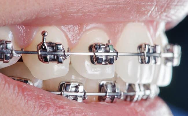 ortodoncia monterrey 01 periodoncia e implantes monterrey