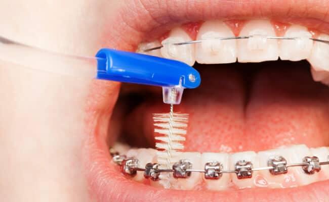 ortodoncia monterrey 03 periodoncia e implantes monterrey