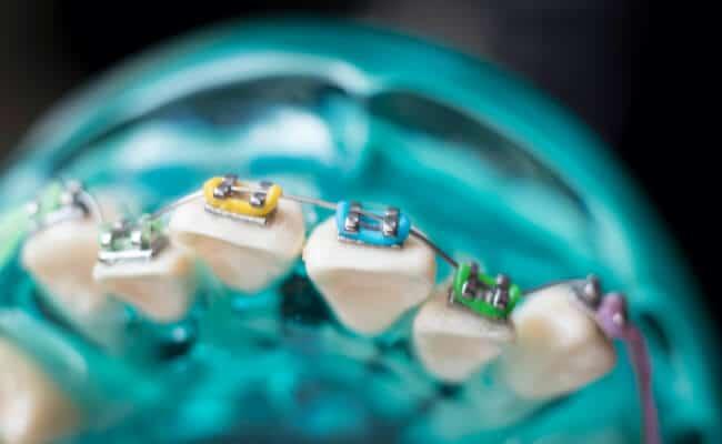 ortodoncia monterrey 04 periodoncia e implantes monterrey