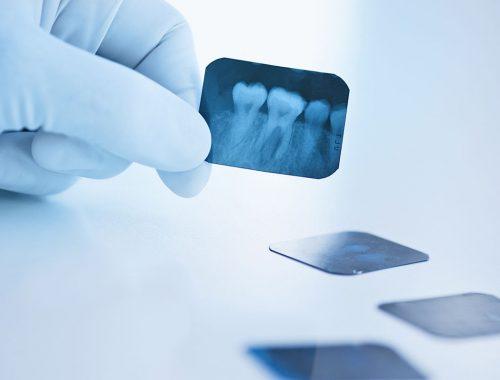 radiografia de colmillo muela y dientes periodoncia e implantes monterrey