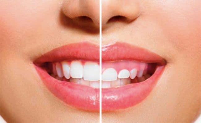 recontorneo estetico 01 periodoncia e implantes monterrey