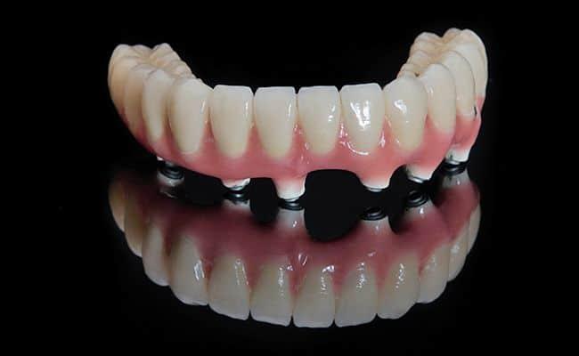 rehabilitacion de implantes dentales 02 periodoncia e implantes monterrey