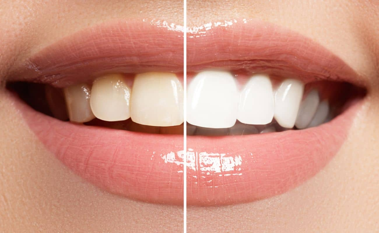 tres aspectos tomar en cuenta cuidado dientes periodoncia e implantes monterrey